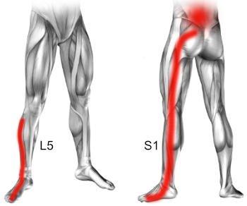 Objawem dyskopatii L5 S1 jest ból rwy kulszowej