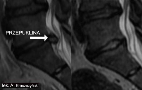 Leczenie przepukliny kręgosłupa bez operacji