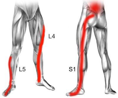 Objawy dyskopatii na poziomie L4 L5