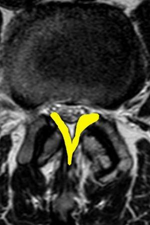Pogrubiałe więzadła żółte w kręgosłupie ze zwężeniem kanału kręgowego