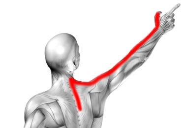 Zespół korzeniowy C6, objawy, przyczyny ucisku na korzenie nerwowego C6