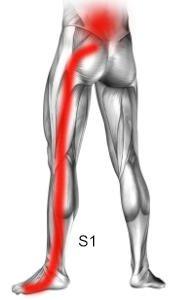 Zespół korzeniowy S1 objawy, przyczyny ucisku na korzenie nerwowego S1