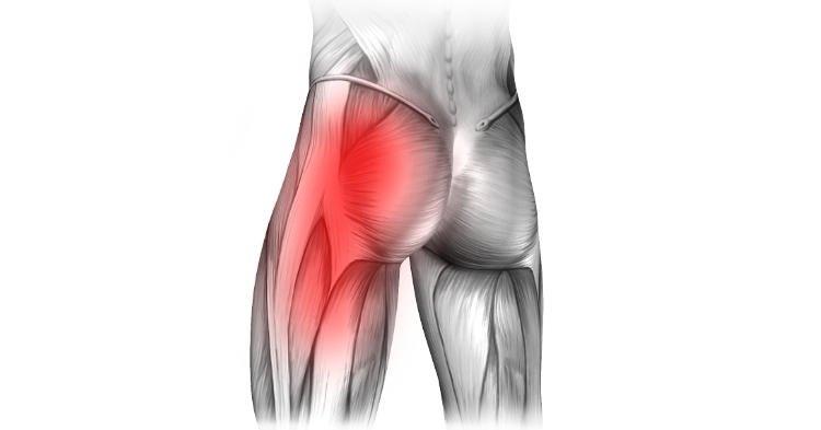 Ból pośladka – przyczyny, objawy, leczenie bólu