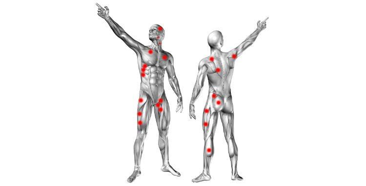 Znalezione obrazy dla zapytania terapia punktów spustowych