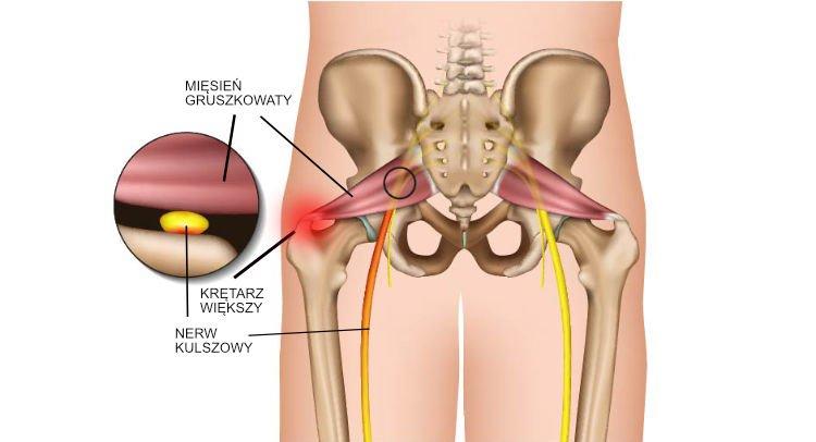 Zapalenie mięśnia gruszkowatego