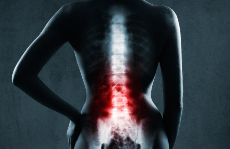 Ból kręgosłupa lędźwiowego – co pomaga, ból w nocy i przy schylaniu
