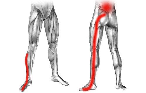 Ból lędźwiowy promieniujący do nogi