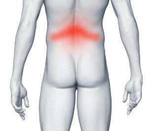 Ból pleców w odcinku lędźwiowym - złamanie kręgu