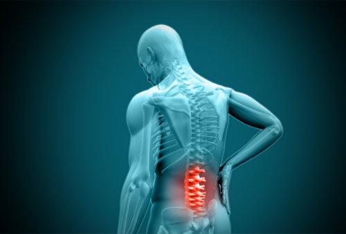 Ból pleców kręgosłupa lędźwiowego