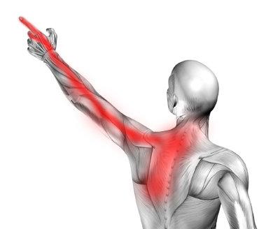 Ból pod lewą łopatką i drętwienie lewej ręki