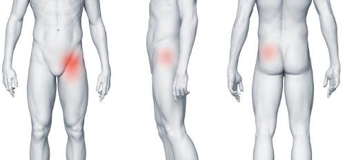 Zapalenie kaletki mięśnia biodrowo udowego i ból w lewej pachwinie promieniujący na nogę