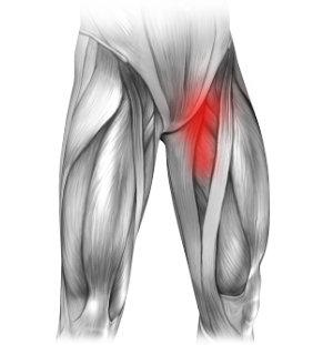 Ból w lewej pachwinie promieniujący na nogę - mięśnie