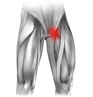 Neuralgia nerwu płciowo udowego i ból w lewej pachwinie promieniujący na nogę