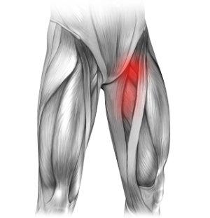 Przepuklina i ból w lewej pachwinie promieniujący na nogę