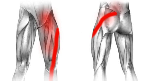 Rwa kulszowa i ból w lewej pachwinie promieniujący na nogę