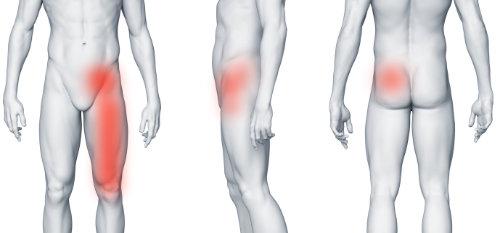 Staw biodrowy - ból w lewej pachwinie promieniujący na nogę