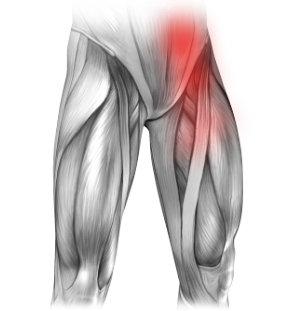 Zapalenie uchyłków jelita Zapalenie uchyłków jelita i ból w lewej pachwinie promieniujący na nogę
