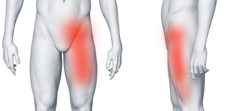 Ból w lewej pachwinie promieniujący na nogę