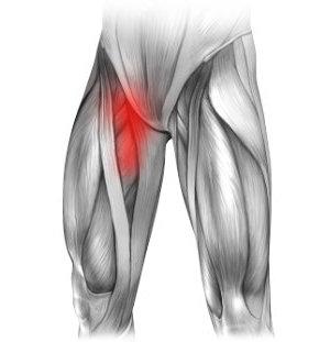 Naderwanie mięśni i ból w prawej pachwinie promieniujący na nogę