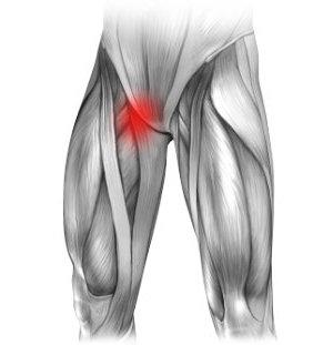 Neuralgia nerwu płciowo udowego i ból w prawej pachwinie promieniujący na nogę