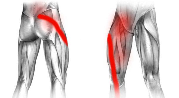 Rwa kulszowa i ból w prawej pachwinie promieniujący na nogę