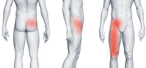 Staw biodrowy i ból w prawej pachwinie promieniujący na nogę