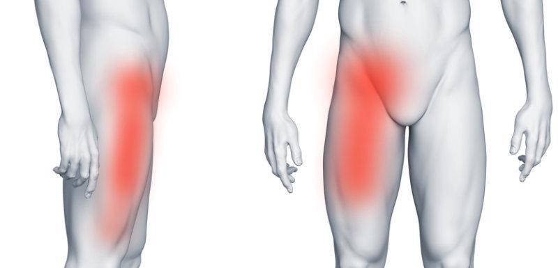 Ból w prawej pachwinie promieniujący na nogę