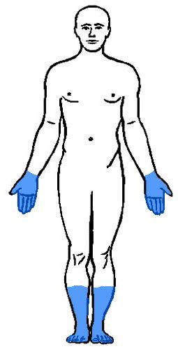 Drętwienie rąk i nóg w cukrzycy