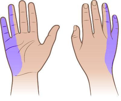 Drętwienie rąk palców małego i serdecznego