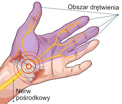 Drętwienie rąk - zespół cieśni nadgarstka