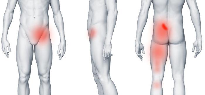 Rwa kulszowa, a ból w pachwinie - staw krzyżowo biodrowy